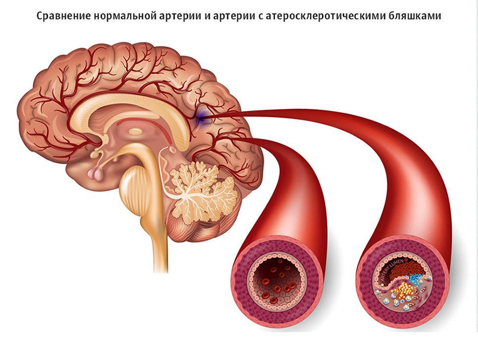 Российские ученые стоят на пороге создания новых лекарств от инсульта