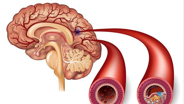 Сравнение здоровой артерии и артерии с атеросклеротическими бляшками, образование которых может привести к инсульту